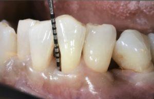 歯周病がなかなか治らない方へ① メインテナンスでは良くならない⁉︎