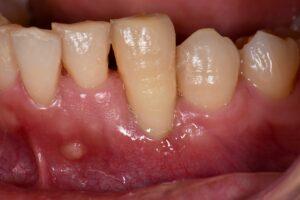 歯周病でグラグラな歯