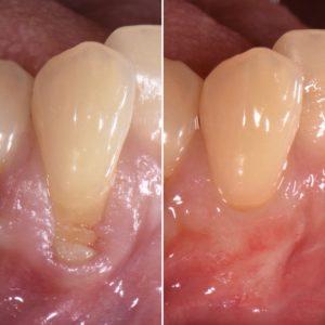 歯ぐき下がり(歯肉退縮)に対する根面被覆治療