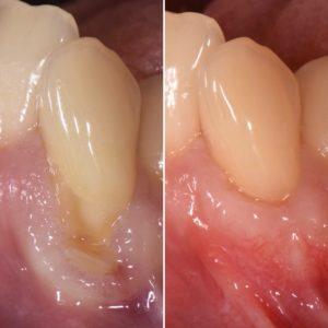 歯ぐき下がりに対する根面被覆治療