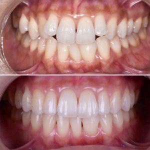 非抜歯矯正歯列矯正歯並び