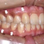 歯肉退縮治療歯ぐき退縮術後札幌