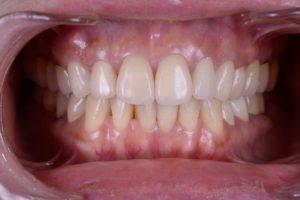 札幌審美歯科、予防歯科