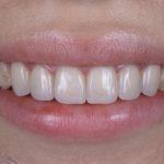 札幌 審美歯科 予防歯科