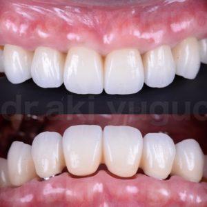 前歯部審美インプラント治療