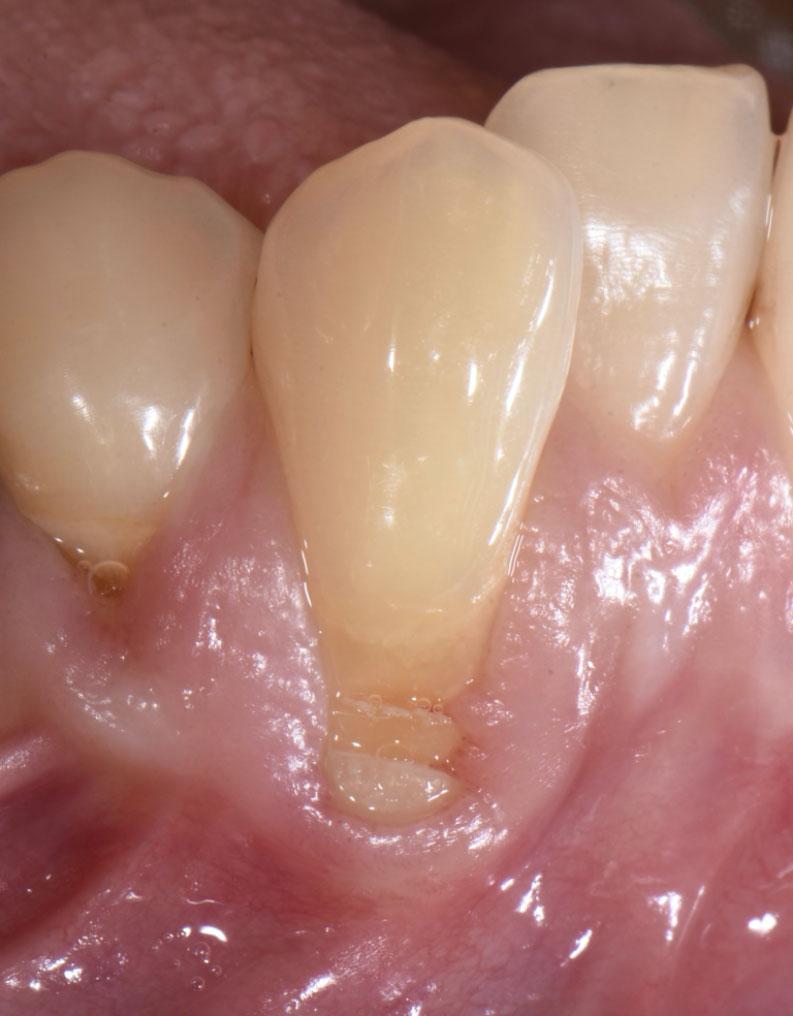 ユアーズデンタルクリニック 歯肉退縮してしまった犬歯