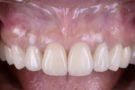 審美歯科治療、セラミック治療札幌